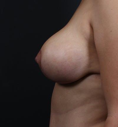 Breast Lift Mastopexy Gallery - Patient 14089704 - Image 6