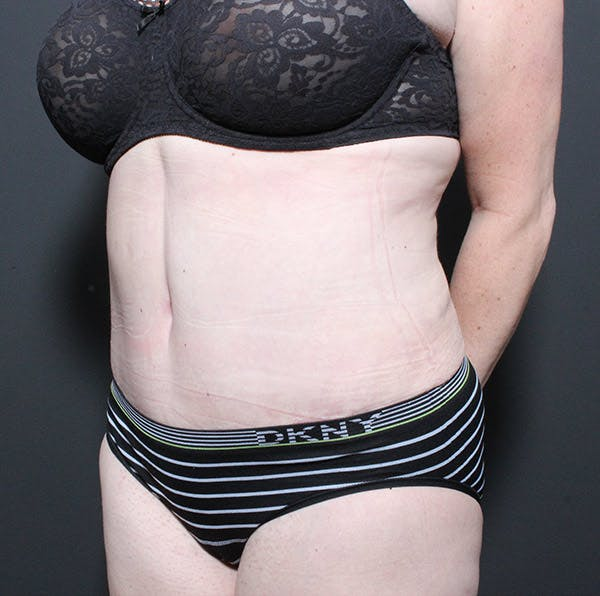 Mommy Makeover Gallery - Patient 14089718 - Image 2