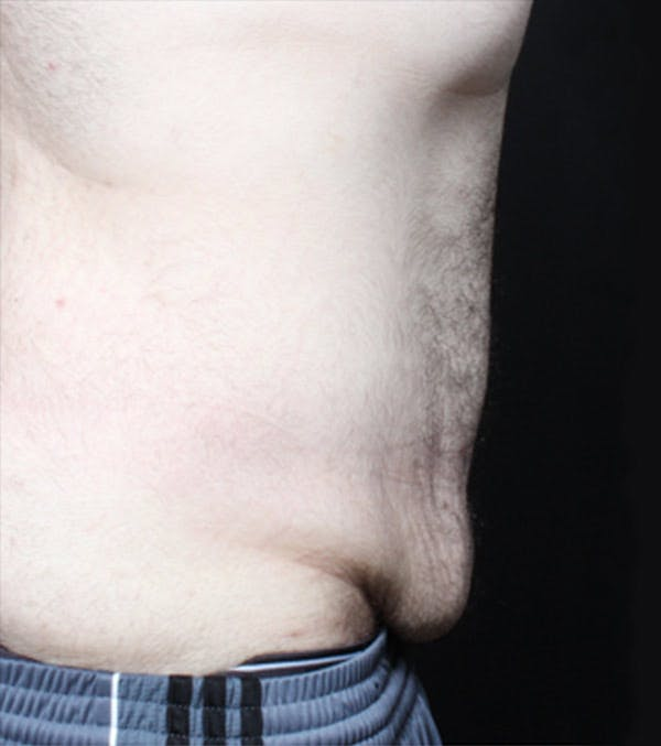 Male Tummy Tuck Gallery - Patient 14089711 - Image 7
