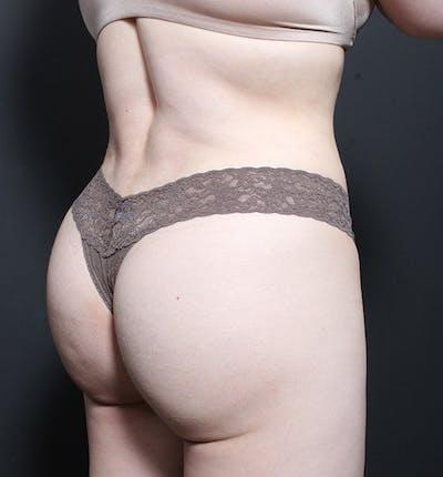 Brazilian Butt Lift Gallery - Patient 14089706 - Image 2