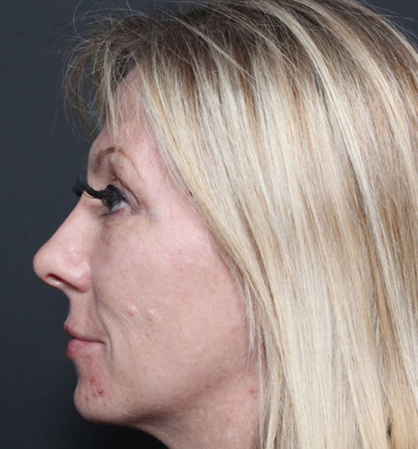Injectables Gallery - Patient 14089714 - Image 6