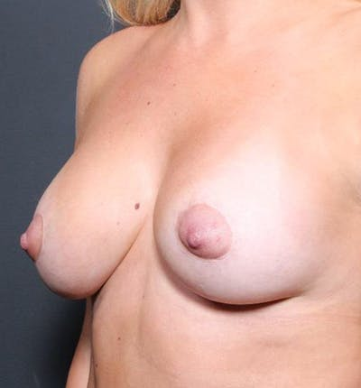 Breast Augmentation Gallery - Patient 14089721 - Image 1
