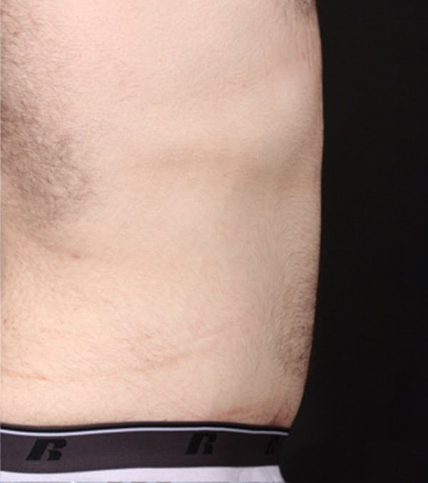 Male Tummy Tuck Gallery - Patient 14089711 - Image 8