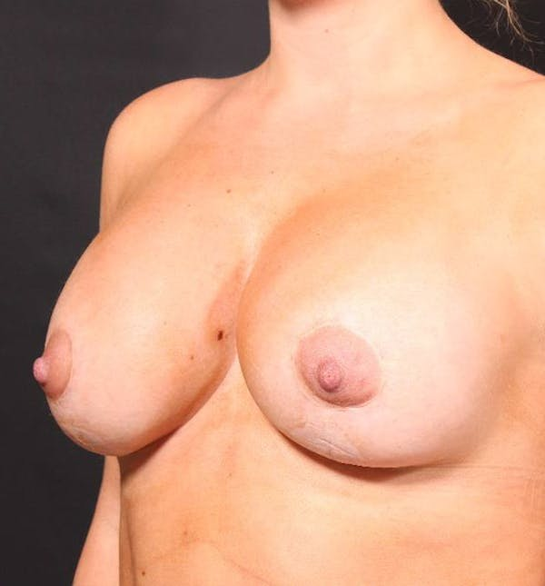 Breast Augmentation Gallery - Patient 14089721 - Image 2