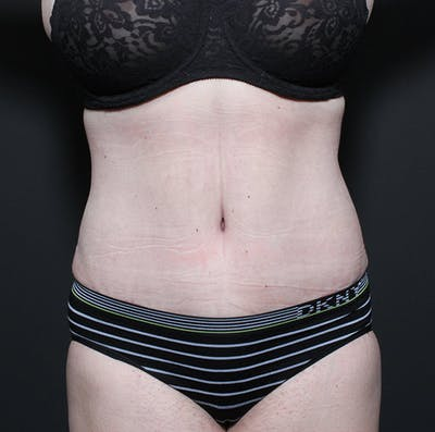 Mommy Makeover Gallery - Patient 14089718 - Image 4