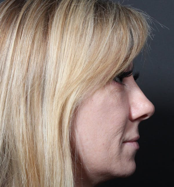 Injectables Gallery - Patient 14089714 - Image 7