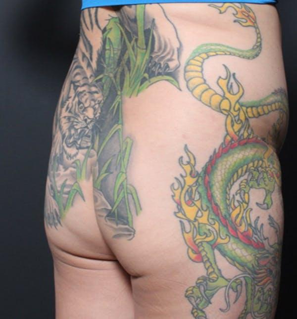Brazilian Butt Lift Gallery - Patient 14089709 - Image 1