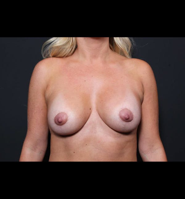 Breast Augmentation Gallery - Patient 14089721 - Image 3
