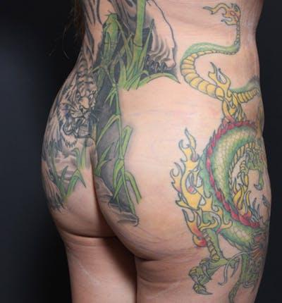 Brazilian Butt Lift Gallery - Patient 14089709 - Image 2