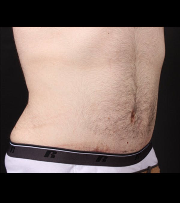 Male Tummy Tuck Gallery - Patient 14089711 - Image 10
