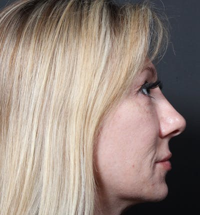 Injectables Gallery - Patient 14089714 - Image 8