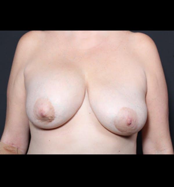 Breast Lift Mastopexy Gallery - Patient 14089722 - Image 3
