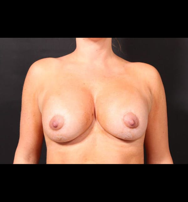 Breast Augmentation Gallery - Patient 14089721 - Image 4