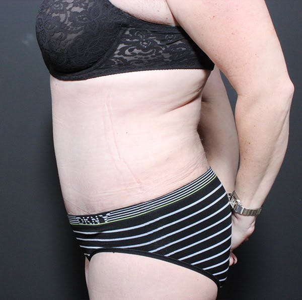 Mommy Makeover Gallery - Patient 14089718 - Image 6