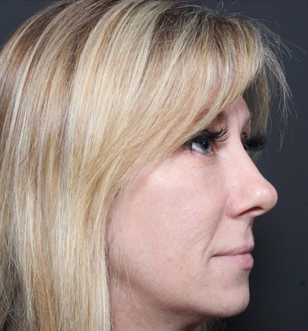 Injectables Gallery - Patient 14089714 - Image 9
