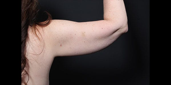 Arm Lift Gallery - Patient 14089715 - Image 1
