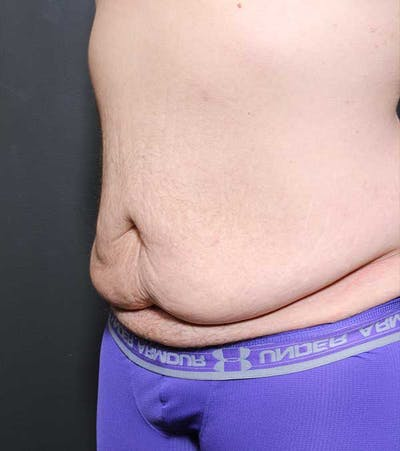 Male Tummy Tuck Gallery - Patient 14089732 - Image 1