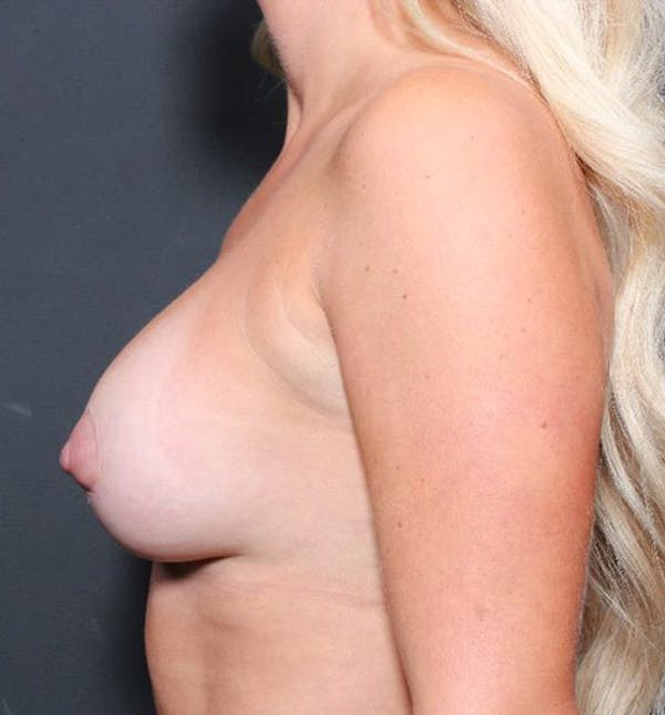 Breast Augmentation Gallery - Patient 14089721 - Image 5