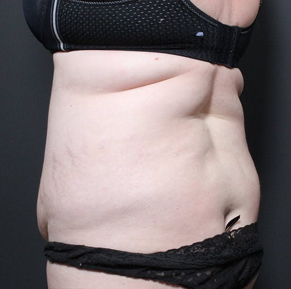 Mommy Makeover Gallery - Patient 14089718 - Image 7