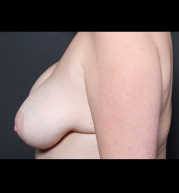 Breast Lift Mastopexy Gallery - Patient 14089722 - Image 5