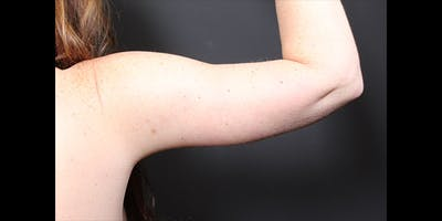 Arm Lift Gallery - Patient 14089715 - Image 2