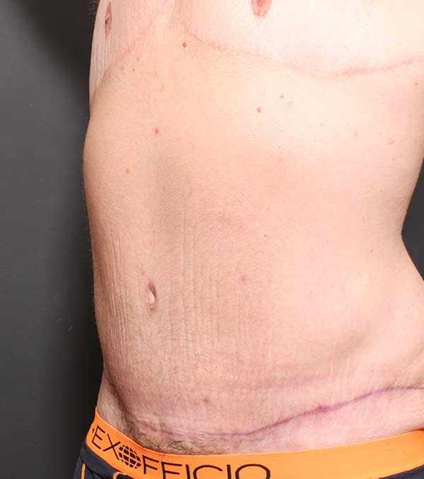 Male Tummy Tuck Gallery - Patient 14089732 - Image 2