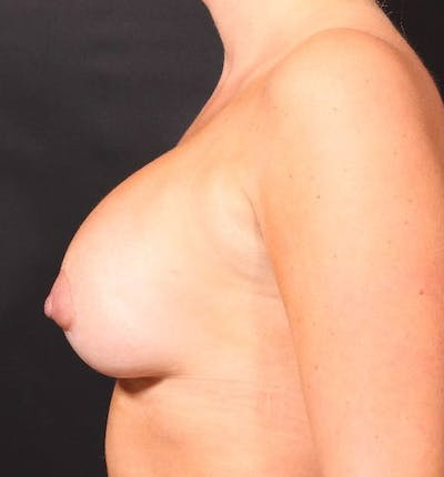 Breast Augmentation Gallery - Patient 14089721 - Image 6