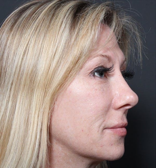 Injectables Gallery - Patient 14089714 - Image 10