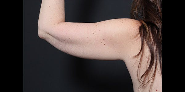 Arm Lift Gallery - Patient 14089715 - Image 3