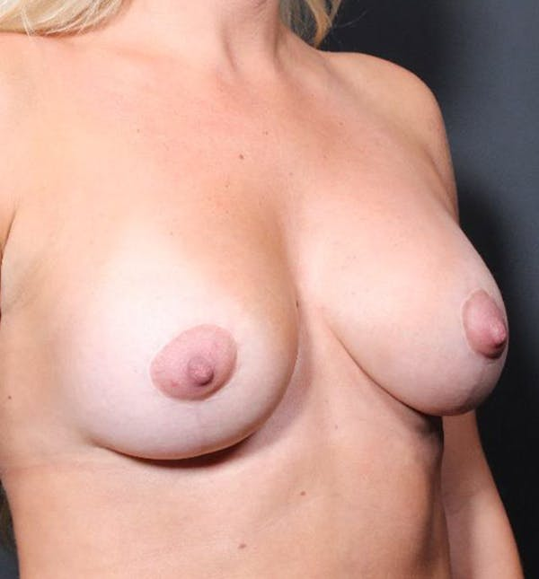 Breast Augmentation Gallery - Patient 14089721 - Image 7