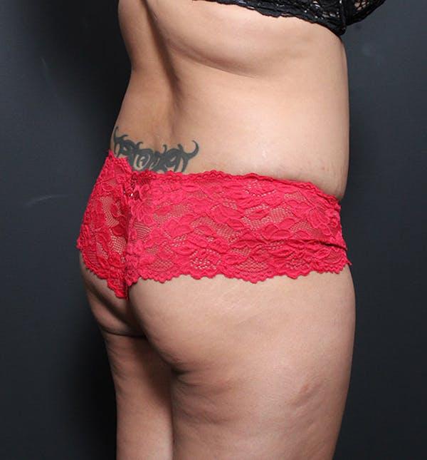 Brazilian Butt Lift Gallery - Patient 14089717 - Image 1