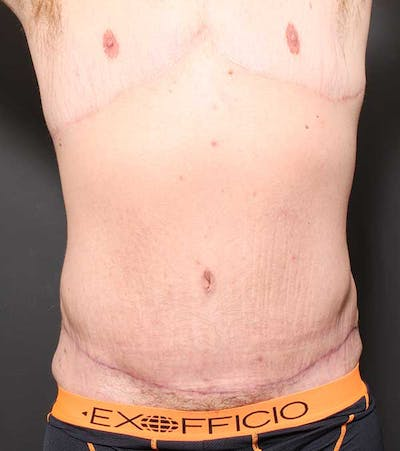 Male Tummy Tuck Gallery - Patient 14089732 - Image 4