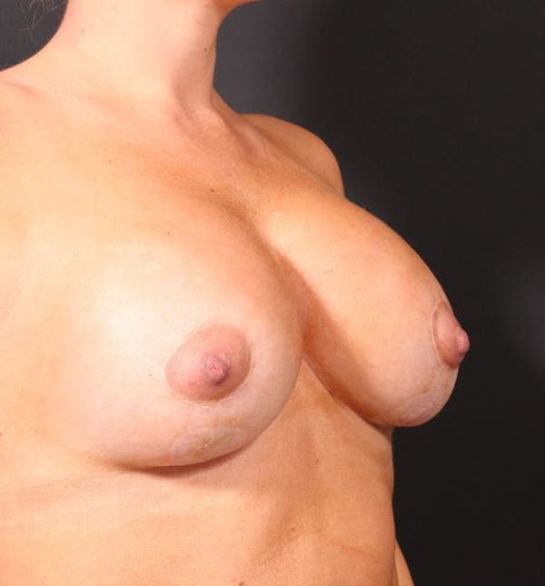 Breast Augmentation Gallery - Patient 14089721 - Image 8