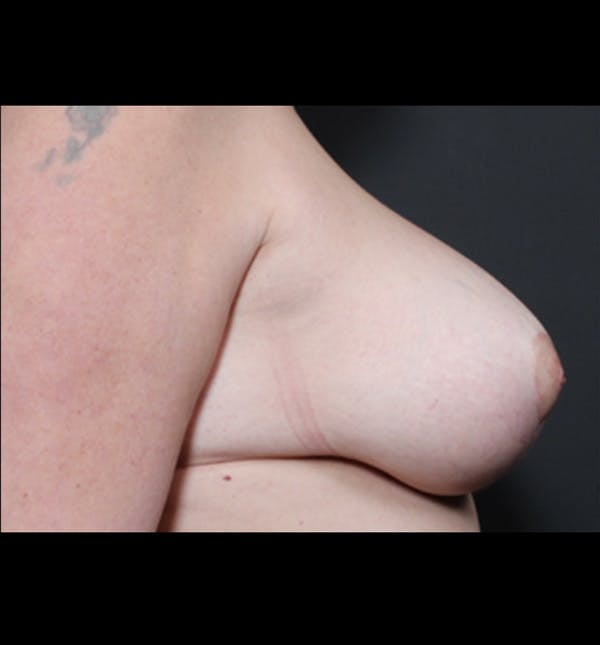Breast Lift Mastopexy Gallery - Patient 14089722 - Image 8