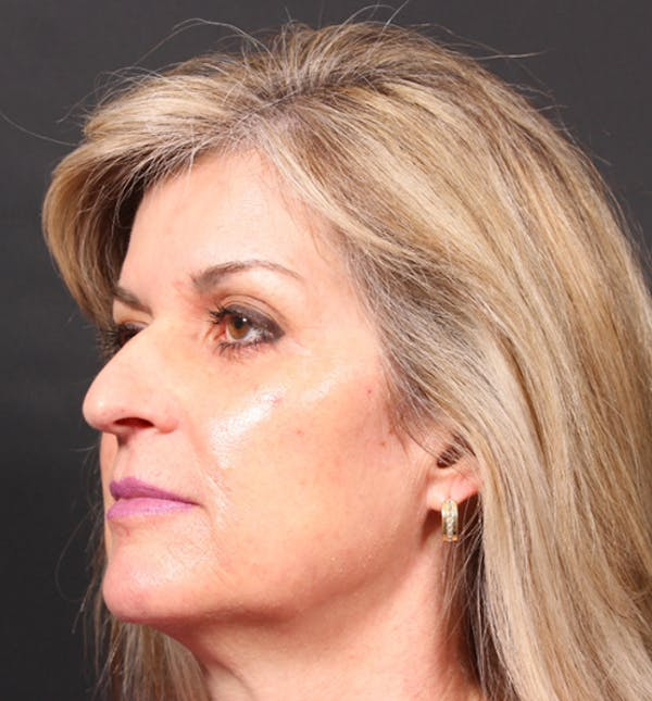 Injectables Gallery - Patient 14089736 - Image 1