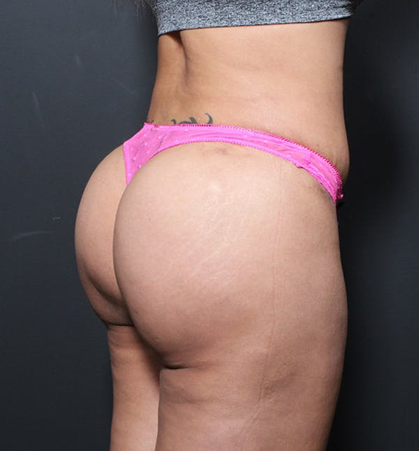 Brazilian Butt Lift Gallery - Patient 14089717 - Image 2