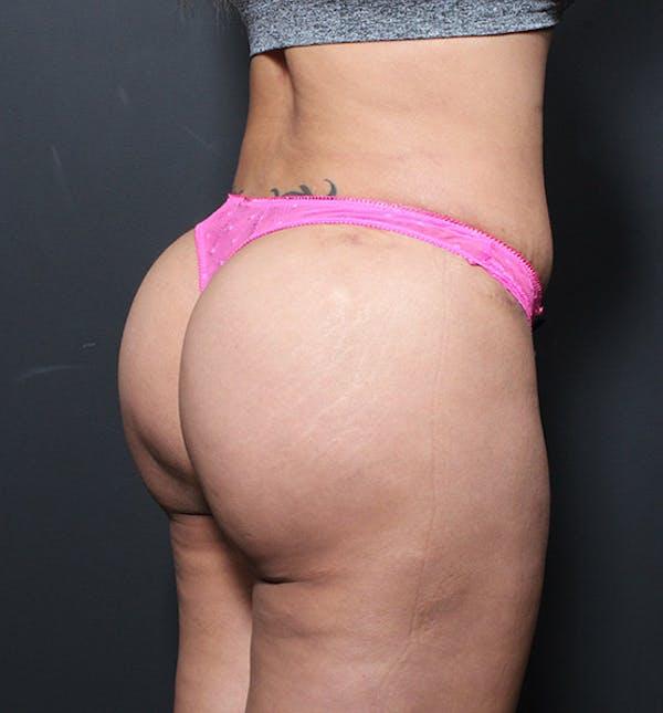 Brazilian Butt Lift Gallery - Patient 14089717 - Image 2