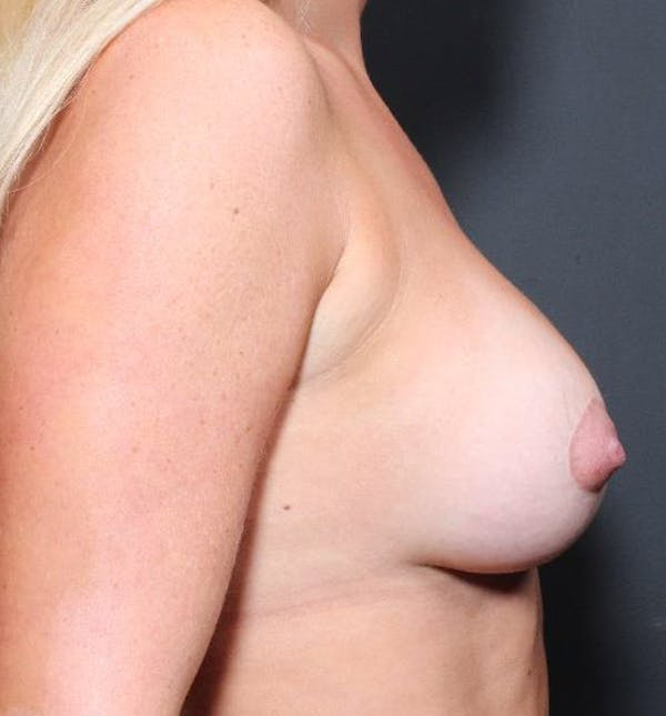 Breast Augmentation Gallery - Patient 14089721 - Image 9