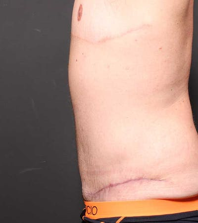 Male Tummy Tuck Gallery - Patient 14089732 - Image 6