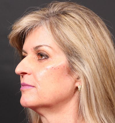 Injectables Gallery - Patient 14089736 - Image 2