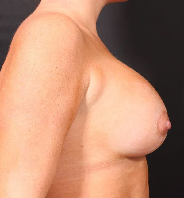 Breast Augmentation Gallery - Patient 14089721 - Image 10