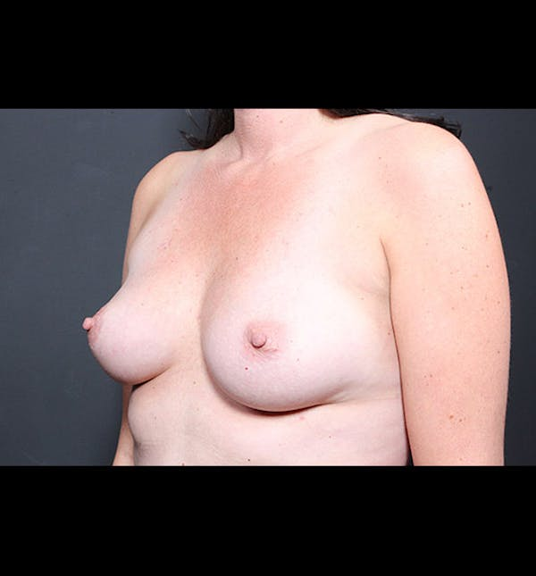 Breast Augmentation Gallery - Patient 14089731 - Image 1