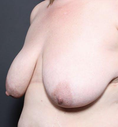 Breast Lift Mastopexy Gallery - Patient 14089725 - Image 1