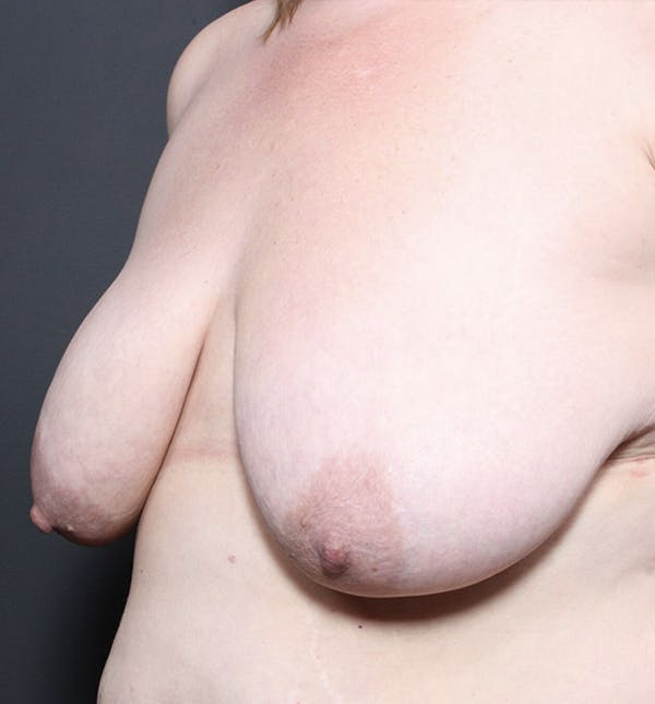 Breast Lift Mastopexy Gallery - Patient 14089725 - Image 1