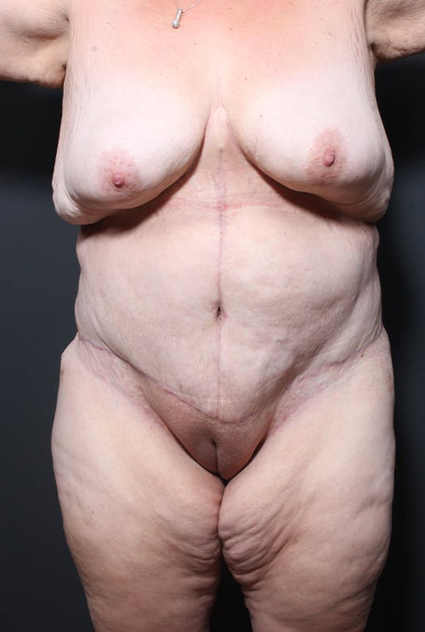 Plus Size Tummy Tuck® Gallery - Patient 14089726 - Image 2
