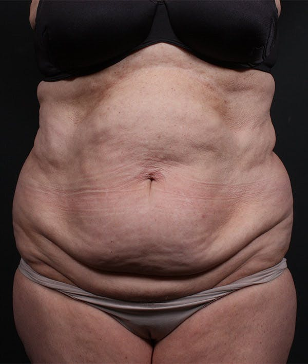 Liposuction Gallery - Patient 14089724 - Image 3