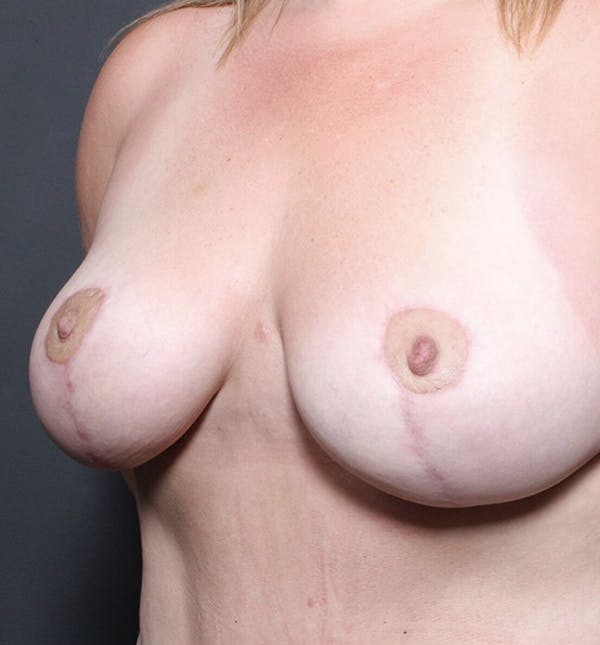 Breast Lift Mastopexy Gallery - Patient 14089725 - Image 2