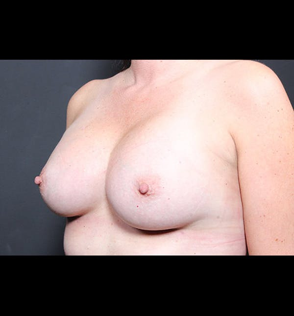 Breast Augmentation Gallery - Patient 14089731 - Image 2