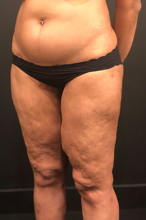 Thigh Lift Gallery - Patient 14089728 - Image 1