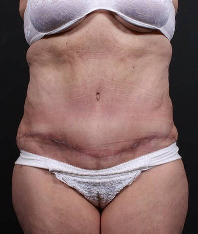 Liposuction Gallery - Patient 14089724 - Image 4